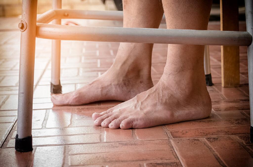 Senior Health: Foot Care